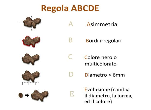 regola-abcde